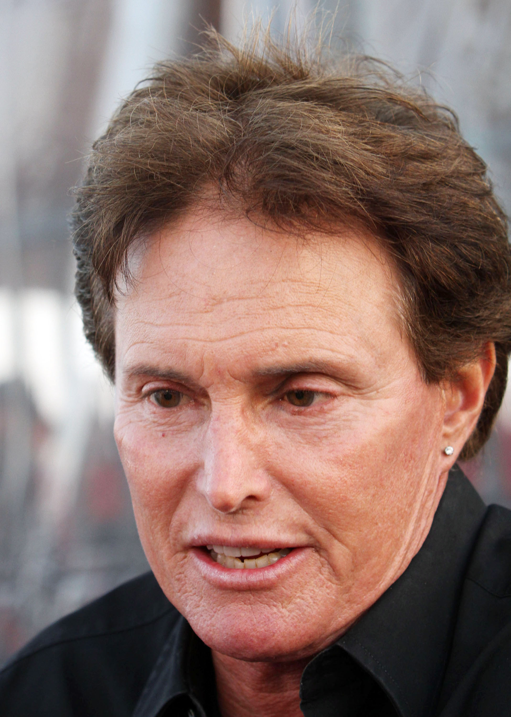 The Cheese Reporter Bruce Jenner Plastic Surgery Before