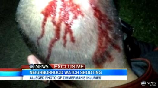 ZIMMERMAN PHOTO OUT !! George-zimmerman-bloody-head-photo_523x293